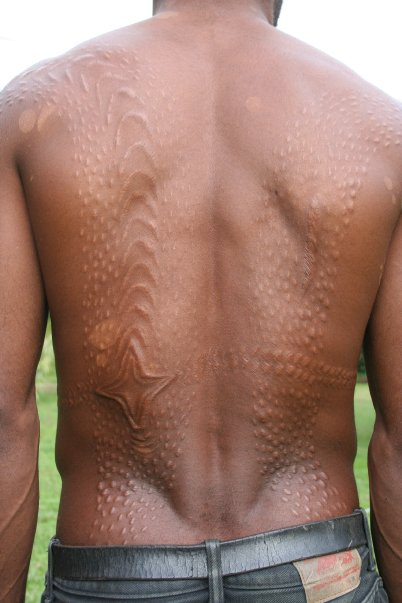 Scarification - Alec Leonello
